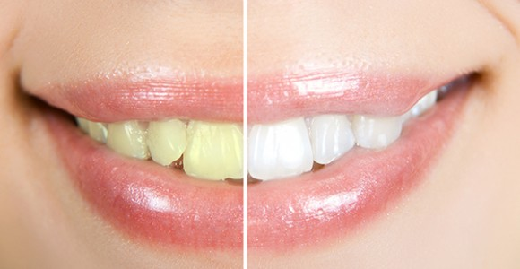galllery-Cosmetic-Dentist-north-ryde